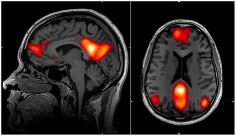 Functional magnetic resonance imaging could reveal whether someone knows something they're not telling.