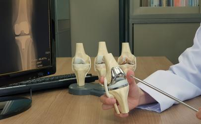 Knee replacement joints